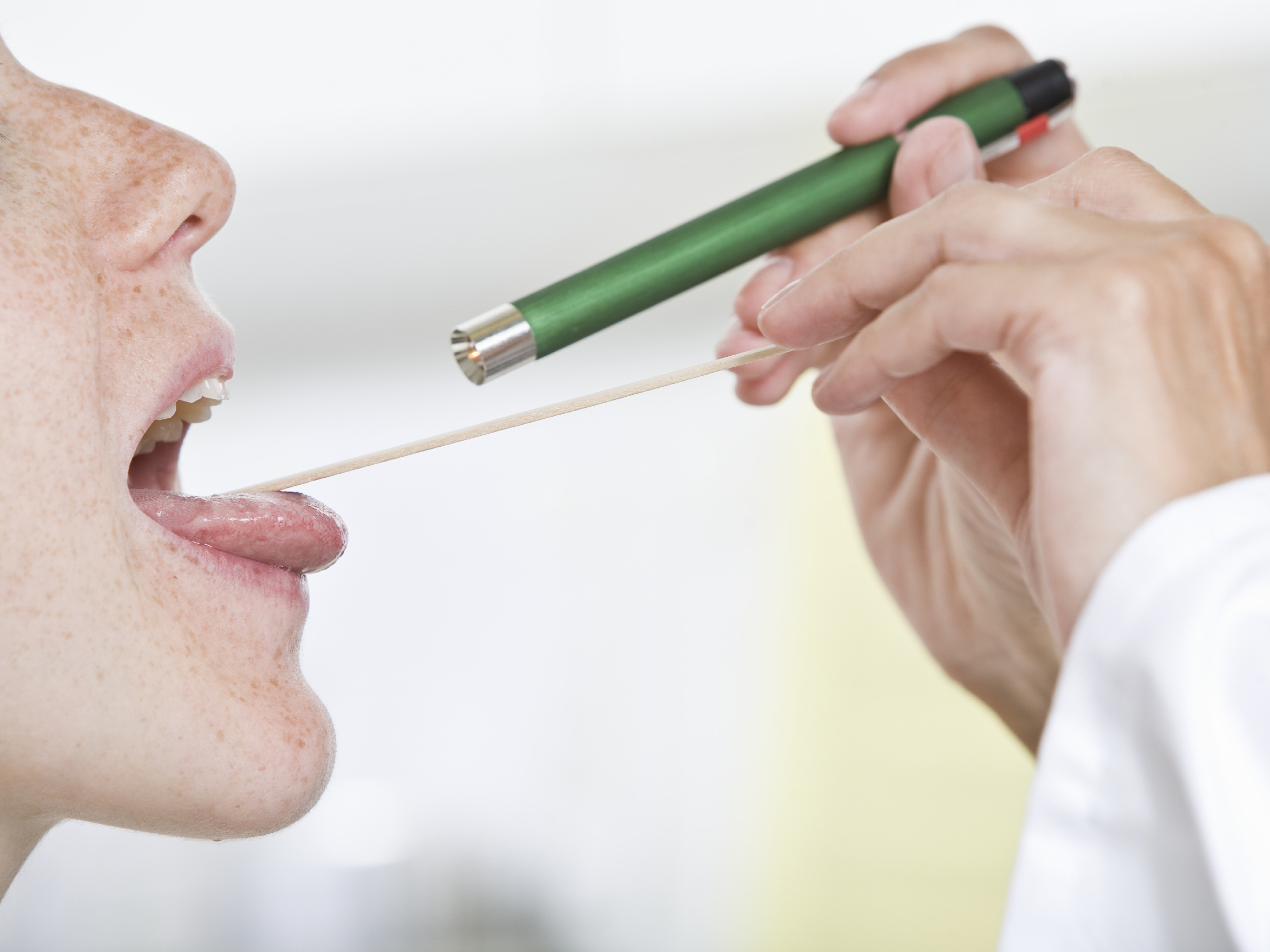 How to gargle with Chlorophyllipt: how to dilute and how much to apply 7